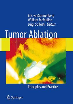 Livraghi, Tito - Tumor Ablation, ebook
