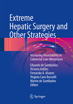 Alvarez, Fernando A. - Extreme Hepatic Surgery and Other Strategies, ebook