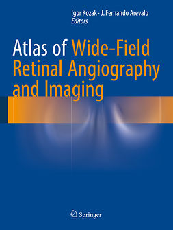Arevalo, J. Fernando - Atlas of Wide-Field Retinal Angiography and Imaging, e-bok
