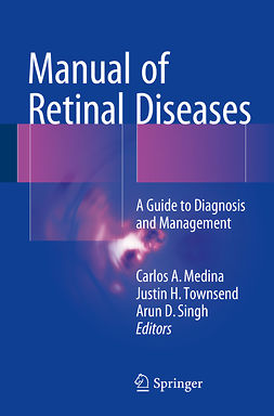 Medina, Carlos A. - Manual of Retinal Diseases, ebook