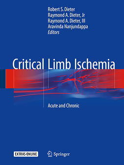 Dieter, Robert S. - Critical Limb Ischemia, ebook