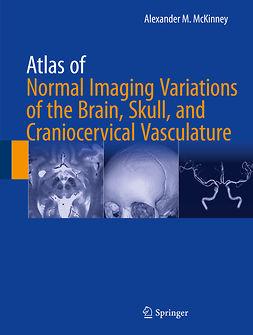 McKinney, Alexander M. - Atlas of Normal Imaging Variations of the Brain, Skull, and Craniocervical Vasculature, e-kirja
