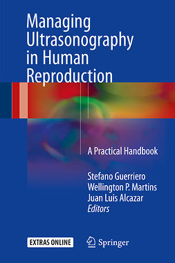 Alcazar, Juan Luis - Managing Ultrasonography in Human Reproduction, e-bok