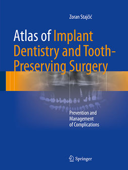 Stajčić, Zoran - Atlas of Implant Dentistry and Tooth-Preserving Surgery, ebook