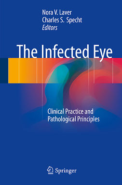 Laver, Nora V. - The Infected Eye, e-bok