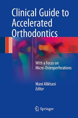 Alikhani, Mani - Clinical Guide to Accelerated Orthodontics, ebook