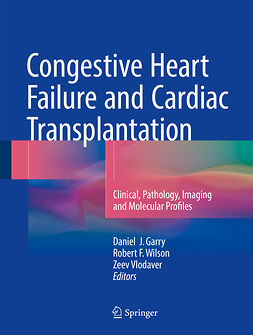 Garry, Daniel J. - Congestive Heart Failure and Cardiac Transplantation, e-kirja