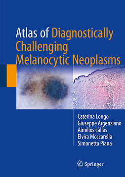 Argenziano, Giuseppe - Atlas of Diagnostically Challenging Melanocytic Neoplasms, e-kirja
