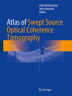 Michalewska, Zofia - Atlas of Swept Source Optical Coherence Tomography, ebook