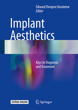Karateew, Edward Dwayne - Implant Aesthetics, ebook
