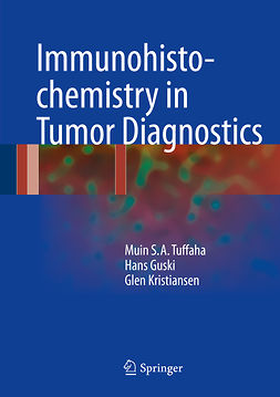 Guski, Hans - Immunohistochemistry in Tumor Diagnostics, ebook