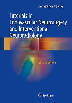 Byrne, James Vincent - Tutorials in Endovascular Neurosurgery and Interventional Neuroradiology, e-kirja