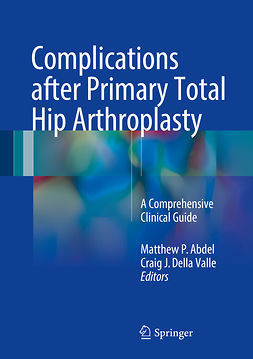 Abdel, Matthew P. - Complications after Primary Total Hip Arthroplasty, e-kirja