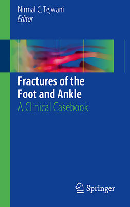 Tejwani, Nirmal C. - Fractures of the Foot and Ankle, e-kirja