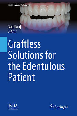 Jivraj, Saj - Graftless Solutions for the Edentulous Patient, e-bok