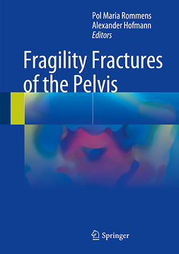 Hofmann, Alexander - Fragility Fractures of the Pelvis, ebook