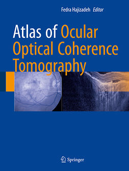 Hajizadeh, Fedra - Atlas of Ocular Optical Coherence Tomography, ebook