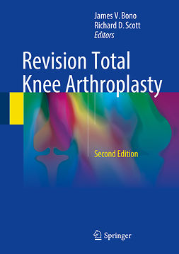 Bono, James V. - Revision Total Knee Arthroplasty, e-bok