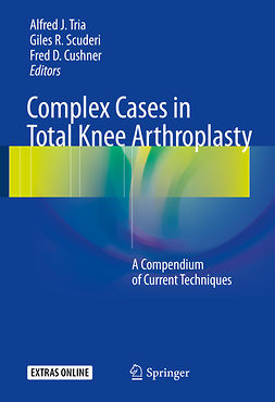 Cushner, Fred D. - Complex Cases in Total Knee Arthroplasty, e-kirja