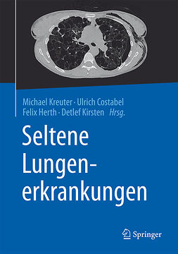 Costabel, Ulrich - Seltene Lungenerkrankungen, e-bok
