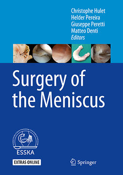 Denti, Matteo - Surgery of the Meniscus, e-kirja