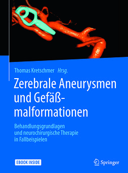 Kretschmer, Thomas - Zerebrale Aneurysmen und Gefäßmalformationen, ebook