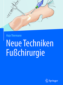 Thermann, Hajo - Neue Techniken Fußchirurgie, ebook