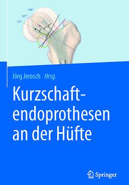 Jerosch, Jörg - Kurzschaftendoprothesen an der Hüfte, ebook