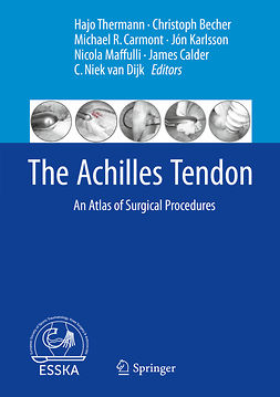 Becher, Christoph - The Achilles Tendon, e-bok