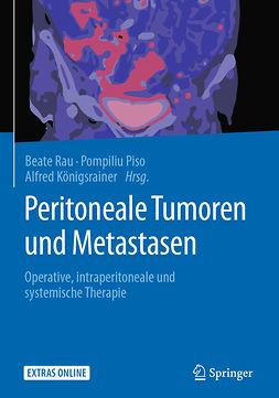 Königsrainer, Alfred - Peritoneale Tumoren und Metastasen, ebook