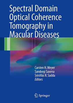 Meyer, Carsten H. - Spectral Domain Optical Coherence Tomography in Macular Diseases, ebook