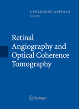 Arevalo, J. Fernando - Retinal Angiography and Optical Coherence Tomography, e-bok