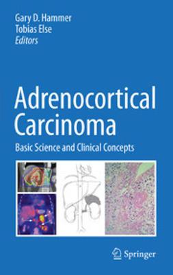 Hammer, Gary D. - Adrenocortical Carcinoma, ebook