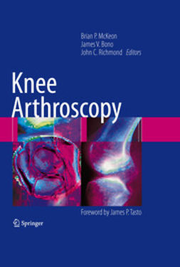 Richmond, John C. - Knee Arthroscopy, ebook