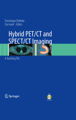 Delbeke, Dominique - Hybrid PET/CT and SPECT/CT Imaging, ebook