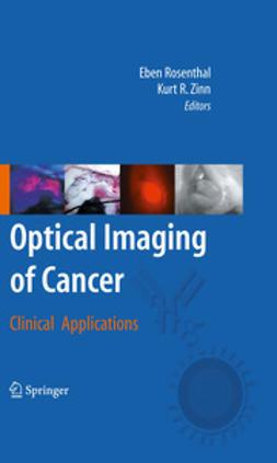 Rosenthal, Eben - Optical Imaging of Cancer, ebook