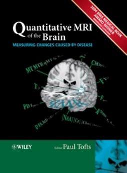 Tofts, Paul - Quantitative MRI of the Brain: Measuring Changes Caused by Disease, ebook