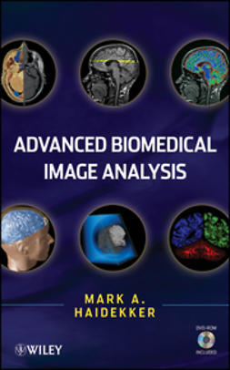 Haidekker, Mark - Advanced Biomedical Image Analysis, e-kirja