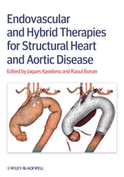 Kpodonu, Jacques - Endovascular and Hybrid Therapies for Structural Heart and Aortic Disease, ebook