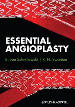 Schmilowski, E. von - Essential Angioplasty, ebook
