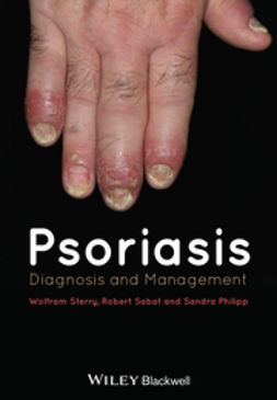 Philipp, Sandra - Psoriasis: Diagnosis and Management, e-bok