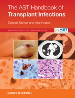 AST Handbook of Transplant Infections