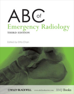 Chan, Otto - ABC of Emergency Radiology, e-bok