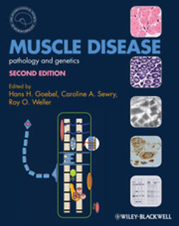 Goebel, Hans H. - Muscle Disease: Pathology and Genetics, ebook