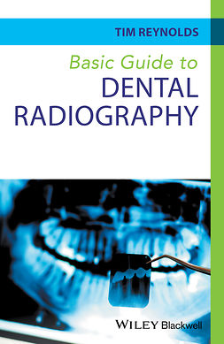 Reynolds, Tim - Basic Guide to Dental Radiography, e-bok