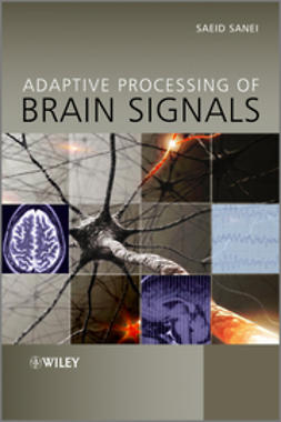 Sanei, Saeid - Adaptive Processing of Brain Signals, ebook