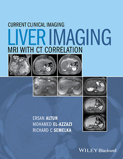 Altun, Ersan - Liver Imaging: MRI with CT Correlation, e-bok