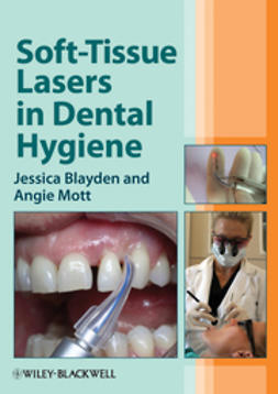Blayden, Jessica - Soft-Tissue Lasers in Dental Hygiene, ebook