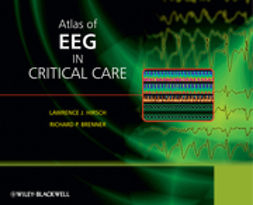 Hirsch, Lawrence - Atlas of EEG in Critical Care, ebook