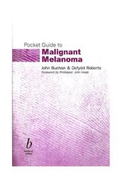 Buchan, John - Pocket Guide to Malignant Melanoma, ebook